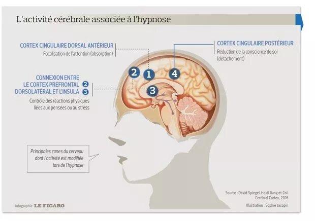 activité cérébrale sous hypnose